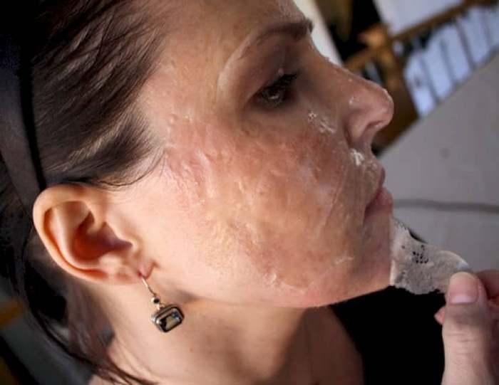 Если вы хотите быстро и эффективно избавиться от черных точек на лице, тогда желатиновая маска — именно то, что вам нужно