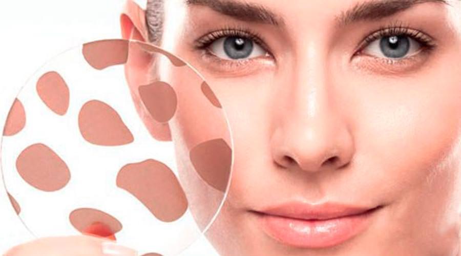 После применения маски от пигментных пятен, необходимо нанести густым слоем питательный крем