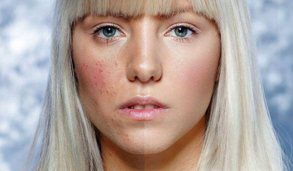 Морковная маска лечит воспаления и маскирует остаточные явления в виде пятнышек и синяков