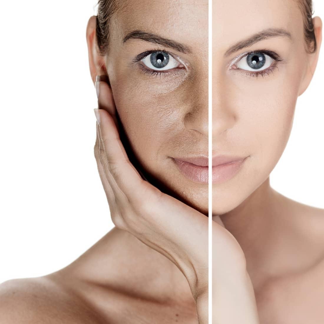 Омолаживающая крем-маска Collamask освежает, тонизирует, подтягивает и оздоравливает кожу лица
