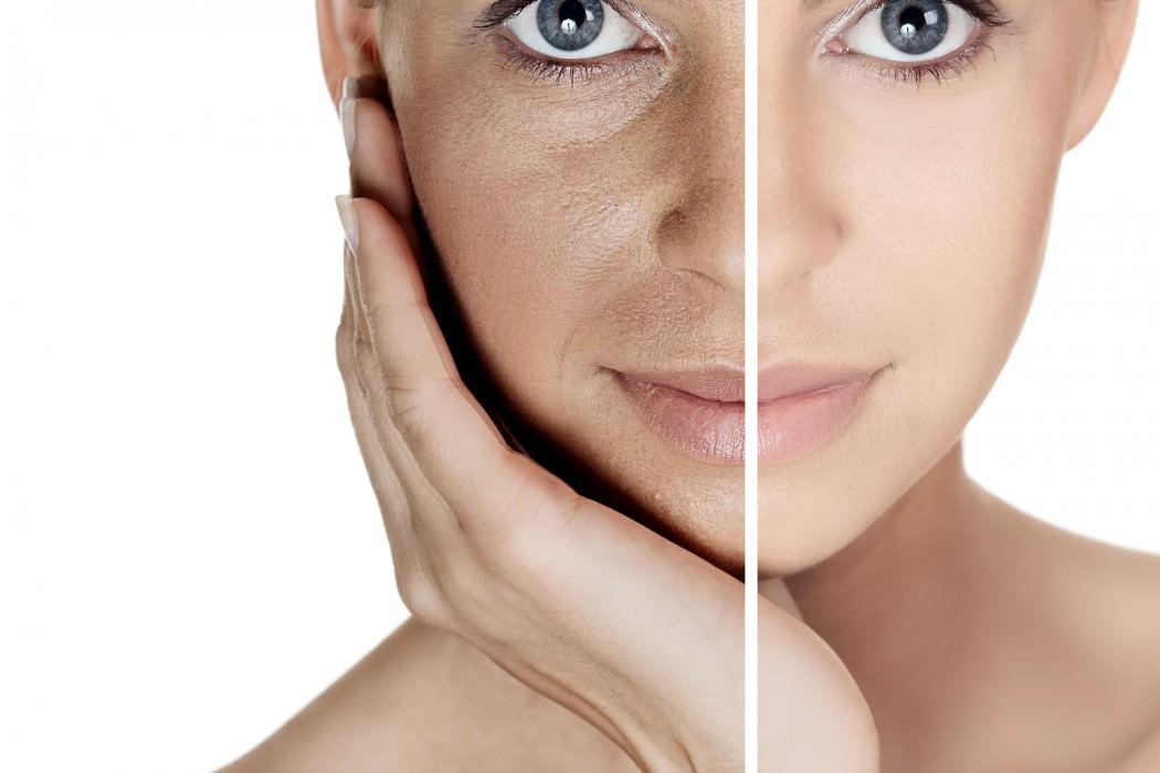 Неверный уход за кожными покровами или применение пилинга во время сильной активности солнца может привести к появлению пигментых пятен