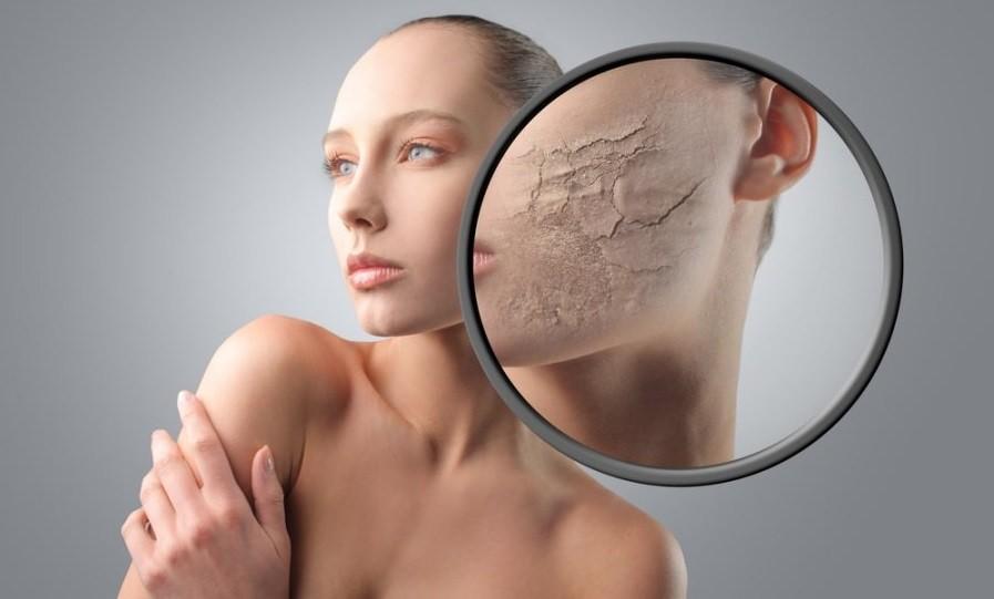 Сухость лица проявляется в виде трещинок и шелушений на коже