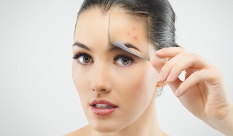 Некачественный уход за кожей – одна из основных причин появления прыщей на лице