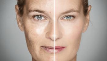 Польза желатина для кожи